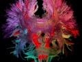 neurone cerveau IA